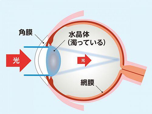 白内障の眼のイラスト